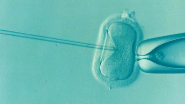 Waar moet je aan denken bij eiceldonatie?